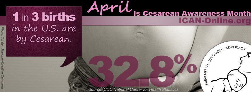 April is C-Section Awareness Month